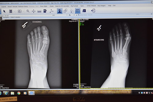 Bunionectomy - Follow-Up and X-Rays