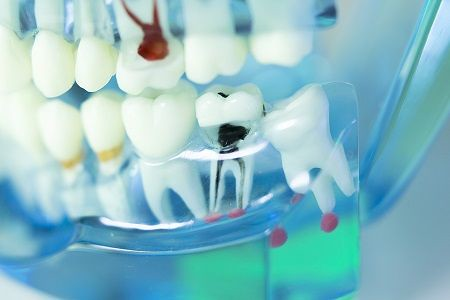 Three Best Treatments by Dentcure Dental Clinic