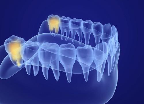 Should I Always Remove My Wisdom Teeth