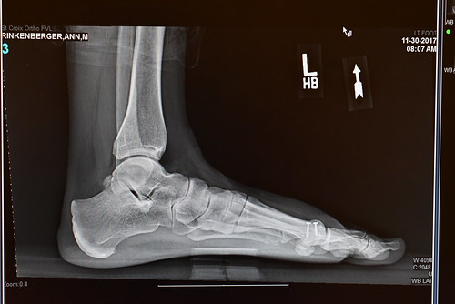 X-Ray - Ann