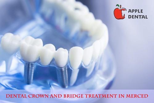 Dental Crown and Bridge Treatment in Merced