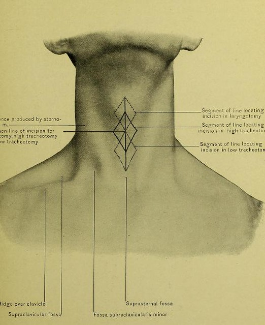 This image is taken from Page 21 of Surgical anatomy of the head and neck : neck mouth pharynx larynx nose orbit eyeball organ of hearing brain back of neck cranium scalp face