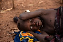 Malarial Mursi Child