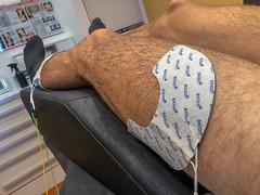 Hochfrequente Muskelstimulation, auch Hochtontherapie genannt