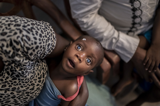 A portrait of a child with double cataract, who is waiting for eye surgery