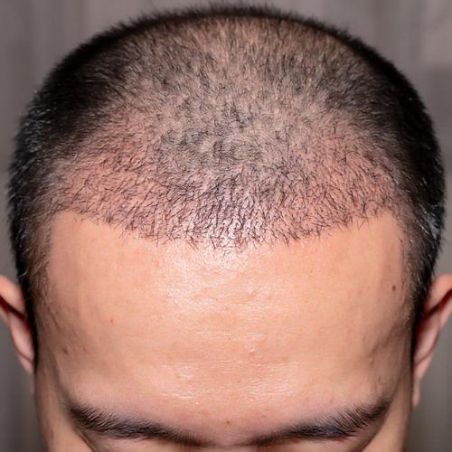 Can I stop hair loss permanently with hair transplant surgery?