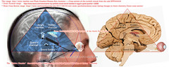 The Great Pyramid and Human Brain (Part 2)