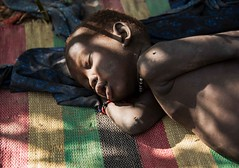 More Malaria, South Sudan