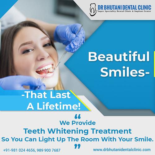 Teeth Whitening Treatment - Dr Bhutani Dental Clinic