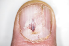 Nail of a working man split and with hematoma