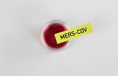 Mers-Cov blood sample