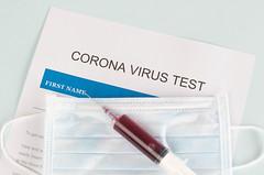 Coronavirus blood test in hospital laboratory