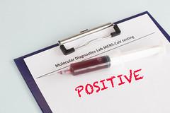Positive Coronavirus blood test