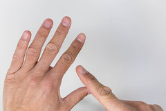Close up of man's hands with finger pointing at damaged skin