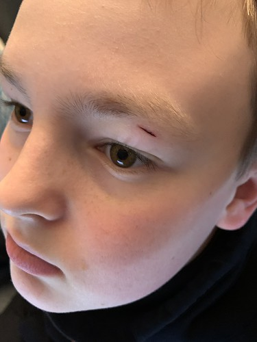 Kid busted his eye - we think on the beside cabinet