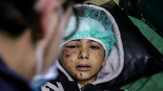 Photo:He lost his eye, the war took it By IAPB/VISION 2020