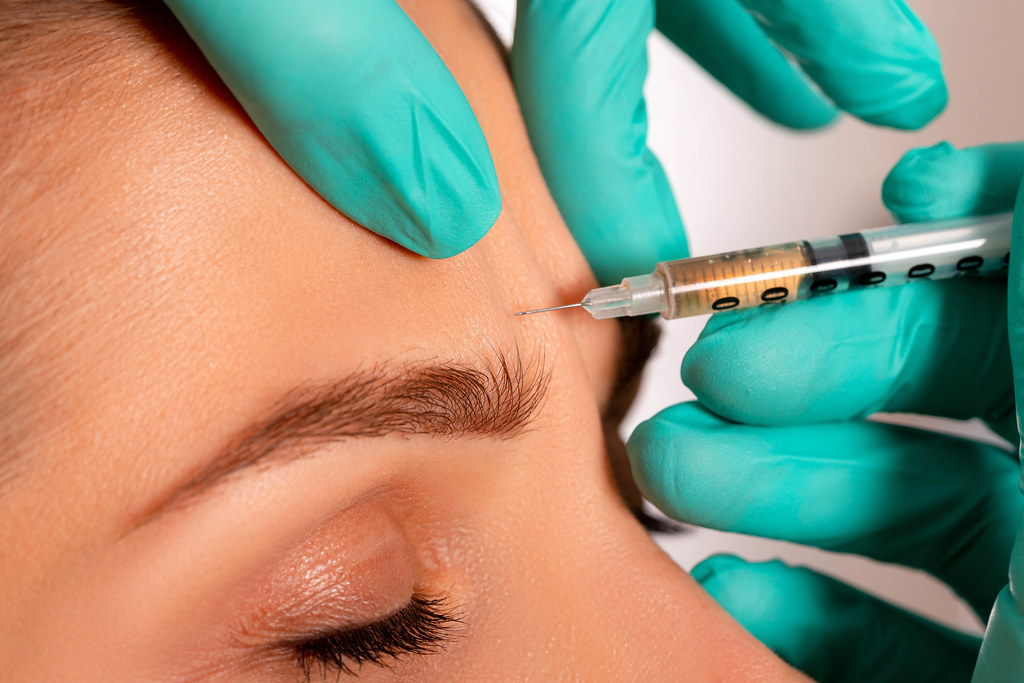 Close-up injection to smooth out wrinkles on a woman's forehead