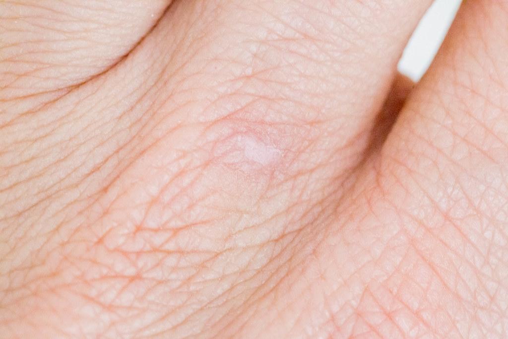 Nahaufnahme von Fingern zeigt Handlinien