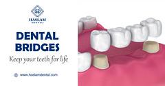 Dental Bridges - Haslam Dental - Dentist Ogden