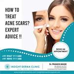 skin laser treatment (2)