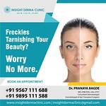 Skin laser treatment in kochi